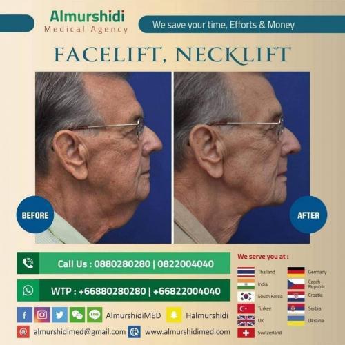 facelift necklift 2